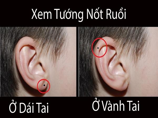 Nốt ruồi ở vành tai có ý nghĩa gì?